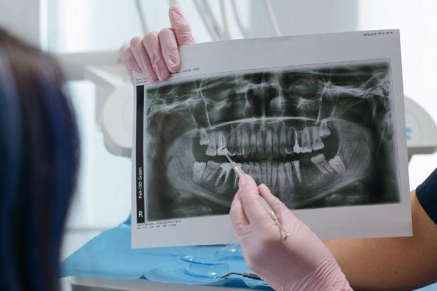 2021-09-Studio-Dentistico-Andrea-Poggi-Informazioni-Utili-Su-Implantologia